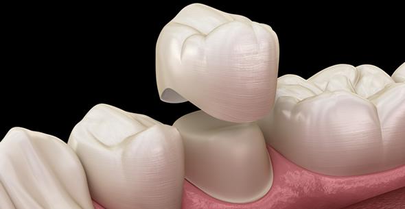 Botox Treatments At Pienaar Health Dental Surgeons In Motueka Nelson NZ