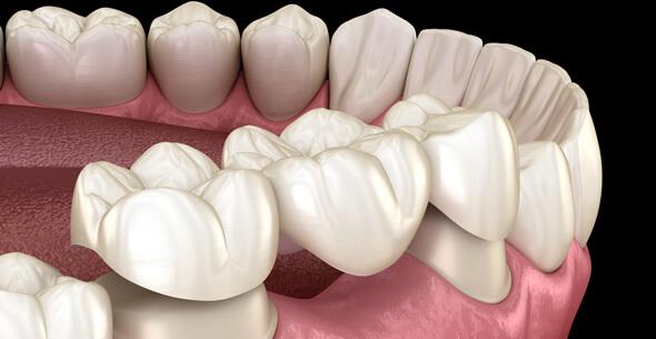 Teeth Whitening At Pienaar Health Dental Surgeons In Motueka Nelson NZ