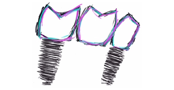 Dental Implant Treatments At Pienaar Health Dental Surgeons In Motueka Nelson NZ